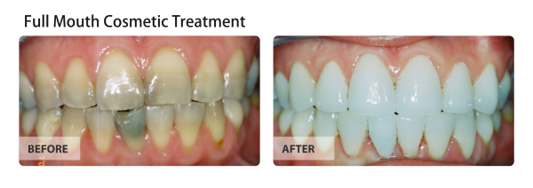 Full Mouth Cosmetic Treatment
